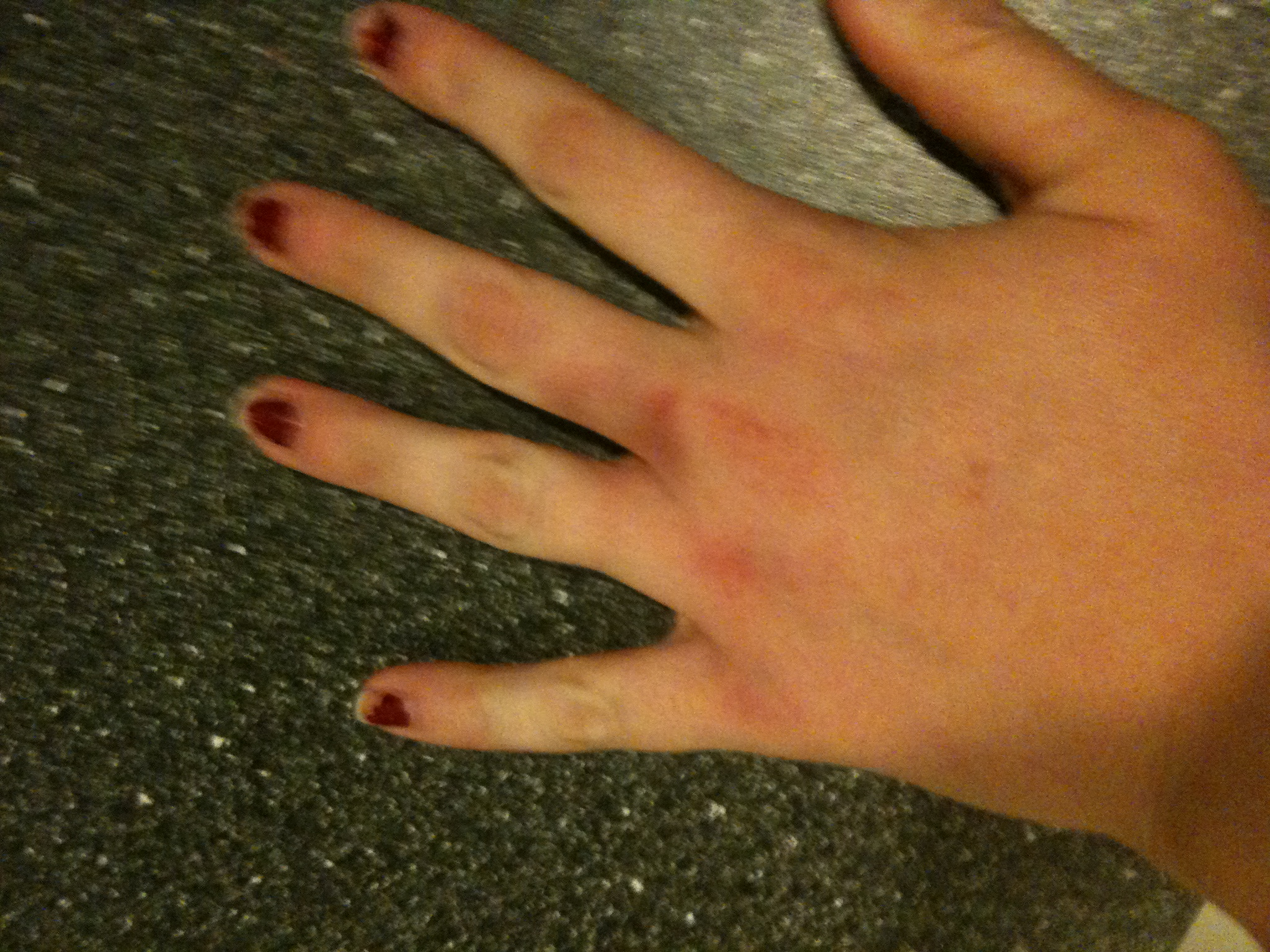 Crushing your hand in the car door=rest day!   Food.Run.Fun.